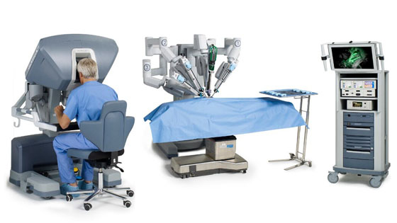 Benefits of Da Vinci Robotic Surgery