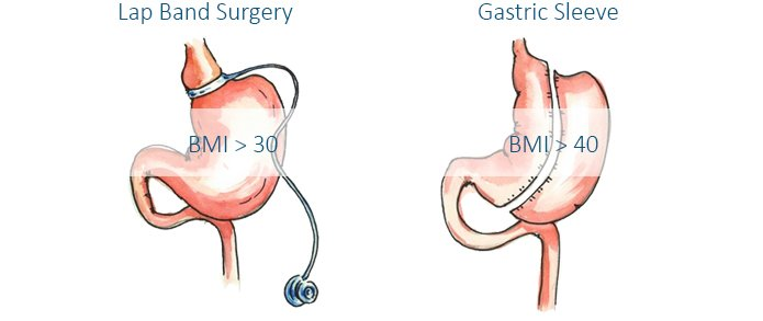 gastric band vs gastric sleeve