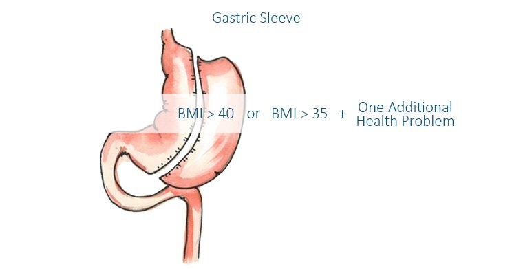 Who Is A Good Candidate For Gastric Sleeve Surgery