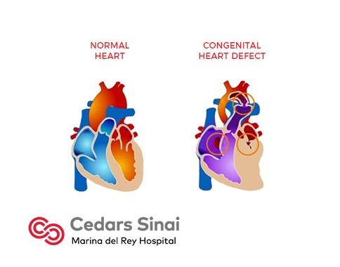 Congenital Heart Defects | Cardiology | Marina Del Rey ...