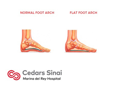 Flat Foot  Podiatry  Marina Del Rey Hospital. Anniversary Party Banners. Fast Food Murals. Ceiling Murals. Reliance Logo. Mother Child Banners. Silver Glitter Stickers. Businessman Signs Of Stroke. Weight Loss Signs
