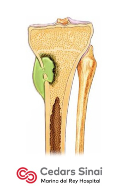 Osteomyelitis | Podiatry | Marina del Rey Hospital