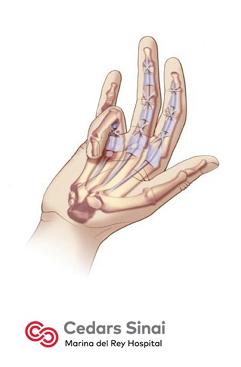 steroid injection into wrist tendonitis