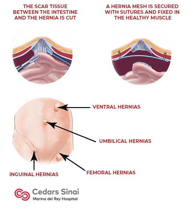 Hernia Repair | Marina Robotics | Marina del Rey Hospital