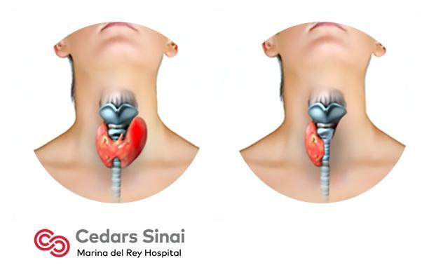 thyroidectomy general surgery marina del rey hospital