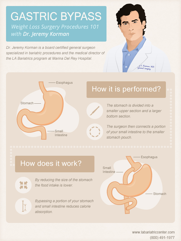 Gastric Bypass With Dr. Jeremy Korman