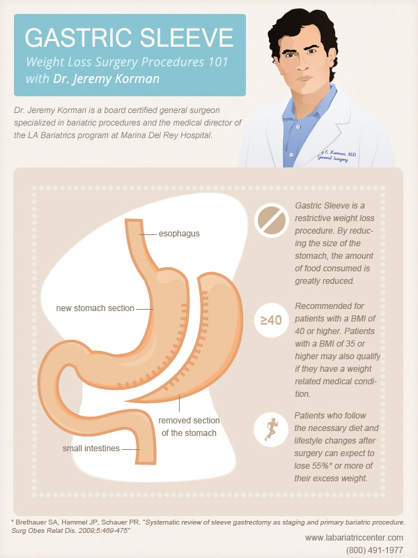 Gastric Sleeve With Dr. Jeremy Korman