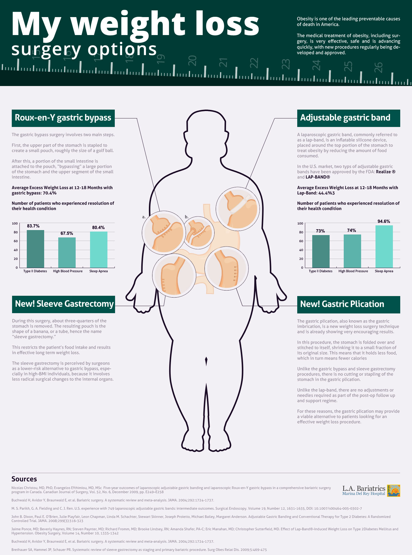 Infographic On Weight Loss Surgery Options Marina Weight Loss